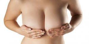 Ovashape - zur Brustvergrößerung - Deutschland - Nebenwirkungen - inhaltsstoffe