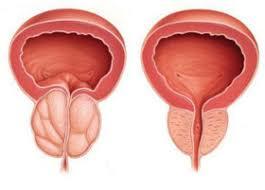 Urotrin - für die Prostata - anwendung - inhaltsstoffe - comments