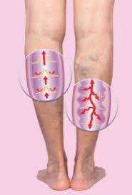 Varicosen - für Krampfadern - test - Nebenwirkungen - anwendung