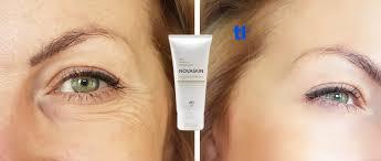 Novaskin - bei Hautproblemen - forum - test - Bewertung
