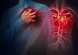 CardioActive – test – kaufen – Bewertung