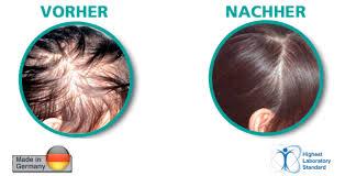 Hairoxol – für das Haarwachstum - bestellen – Nebenwirkungen – erfahrungen