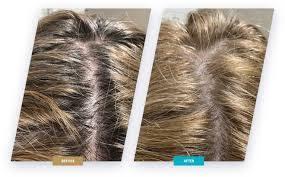 Hairstim – bestellen – inhaltsstoffe – Aktion