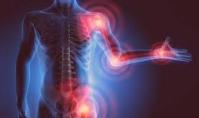 Motion Energy - preis - test - Nebenwirkungen